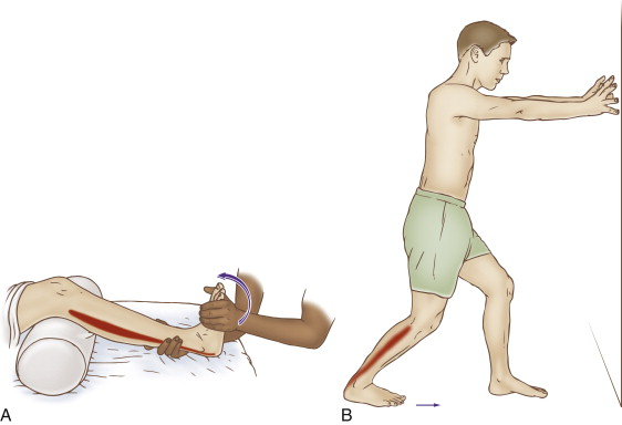 stretching the plantarflexors is helpful for many Achilles tendon disorders