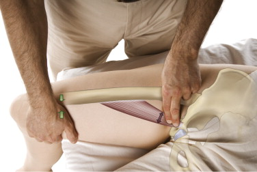 Palpation assessment of an adductor strain