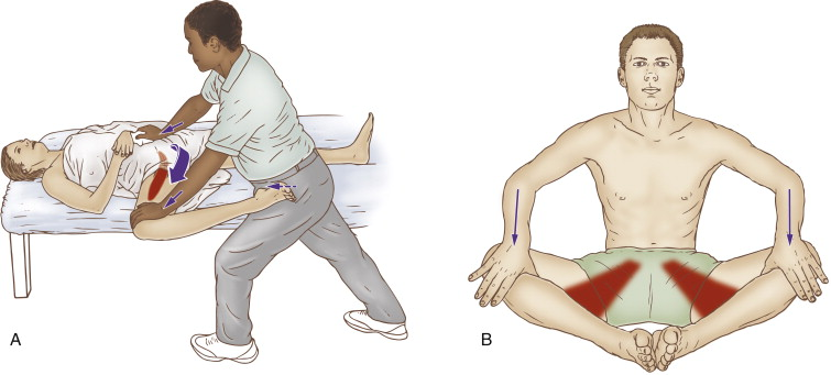 Stretching the adductor muscles is beneficial for a chronic adductor strain