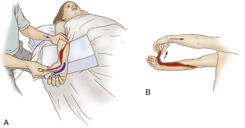 self care for de Quervain's syndrome includes stretching the involved muscles of the thumb