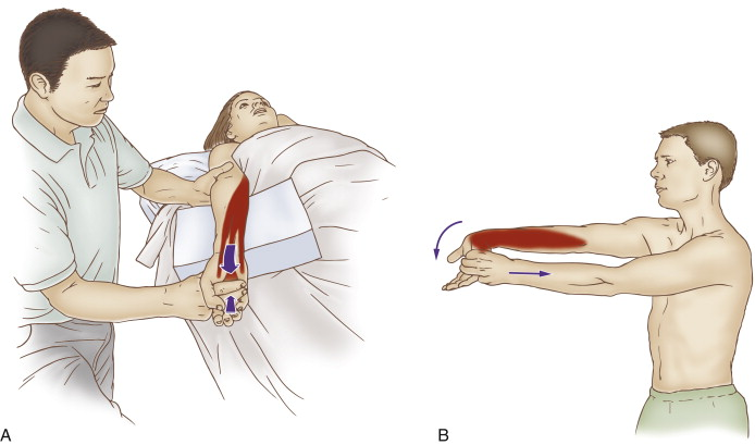 Stretching the musculature of the anterior forearm for golfer's elbow