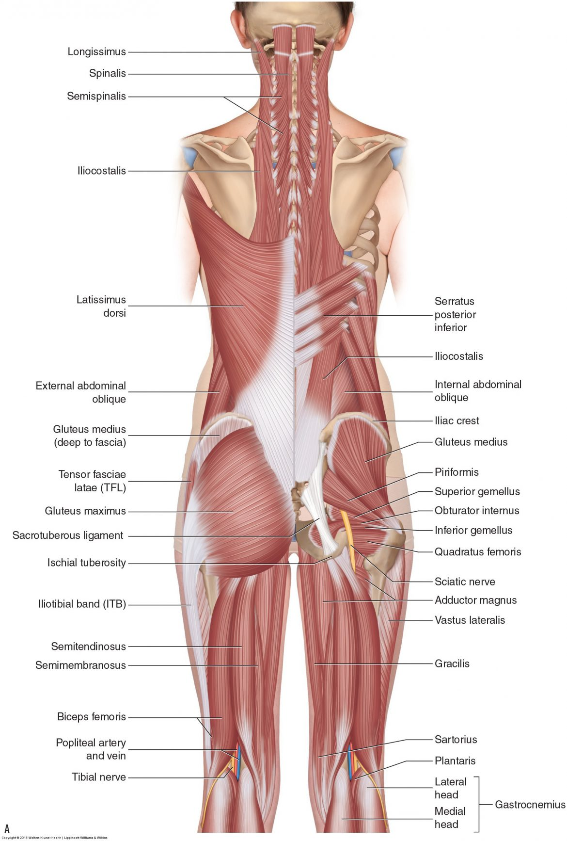 A hamstring strain is tearing of the hamstring musculature. Superficial posterior view of the muscle of the thigh
