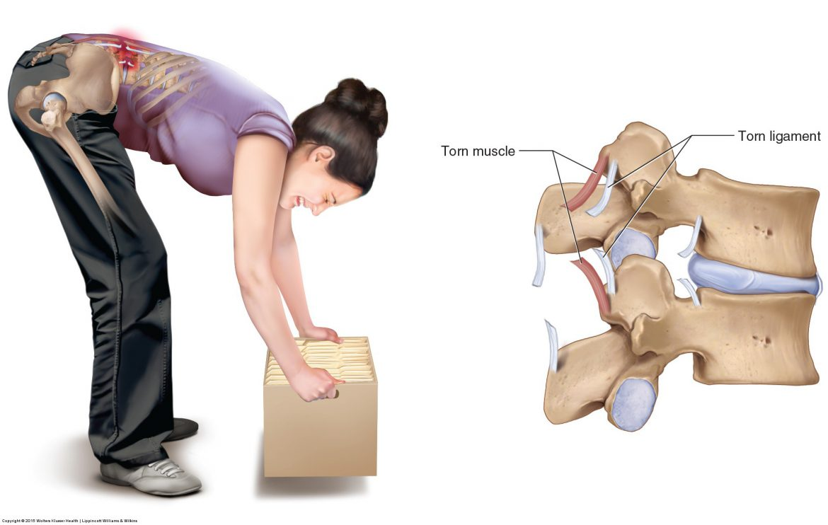 bending over often causes a low back sprain or strain