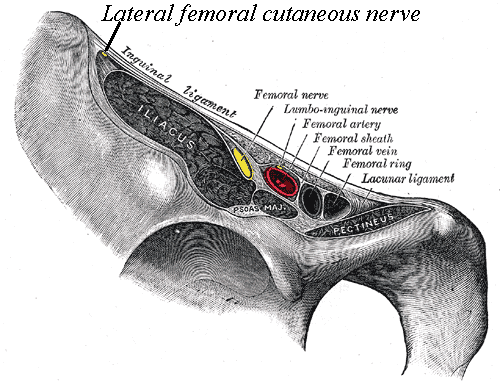meralgia paresthetica is caused by compression of the lateral femoral cutaneous nerve