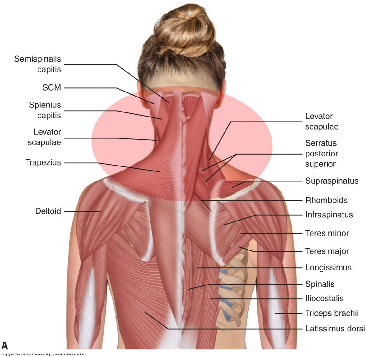 muscle spasming of the neck most often affects the posterior extensor musculature