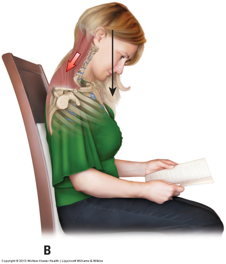 spasmed muscles in the neck often occur due to poor postures such as the one here with the person reading a book in their lap