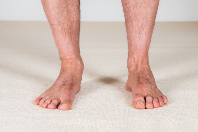 There are many causes of overpronation which causes a dropped arch (flat foot)