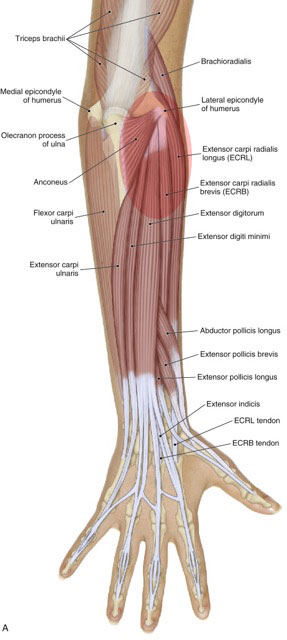 tennis elbow involves inflammation and/or degeneration of the common extensor belly/tendon at the lateral epicondyle of the humerus