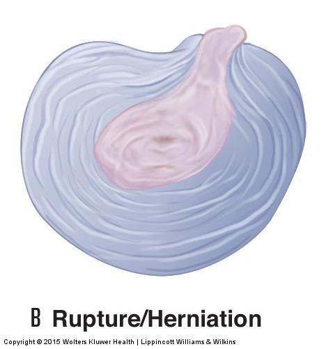 a pathologic disc: here we see a herniated disc