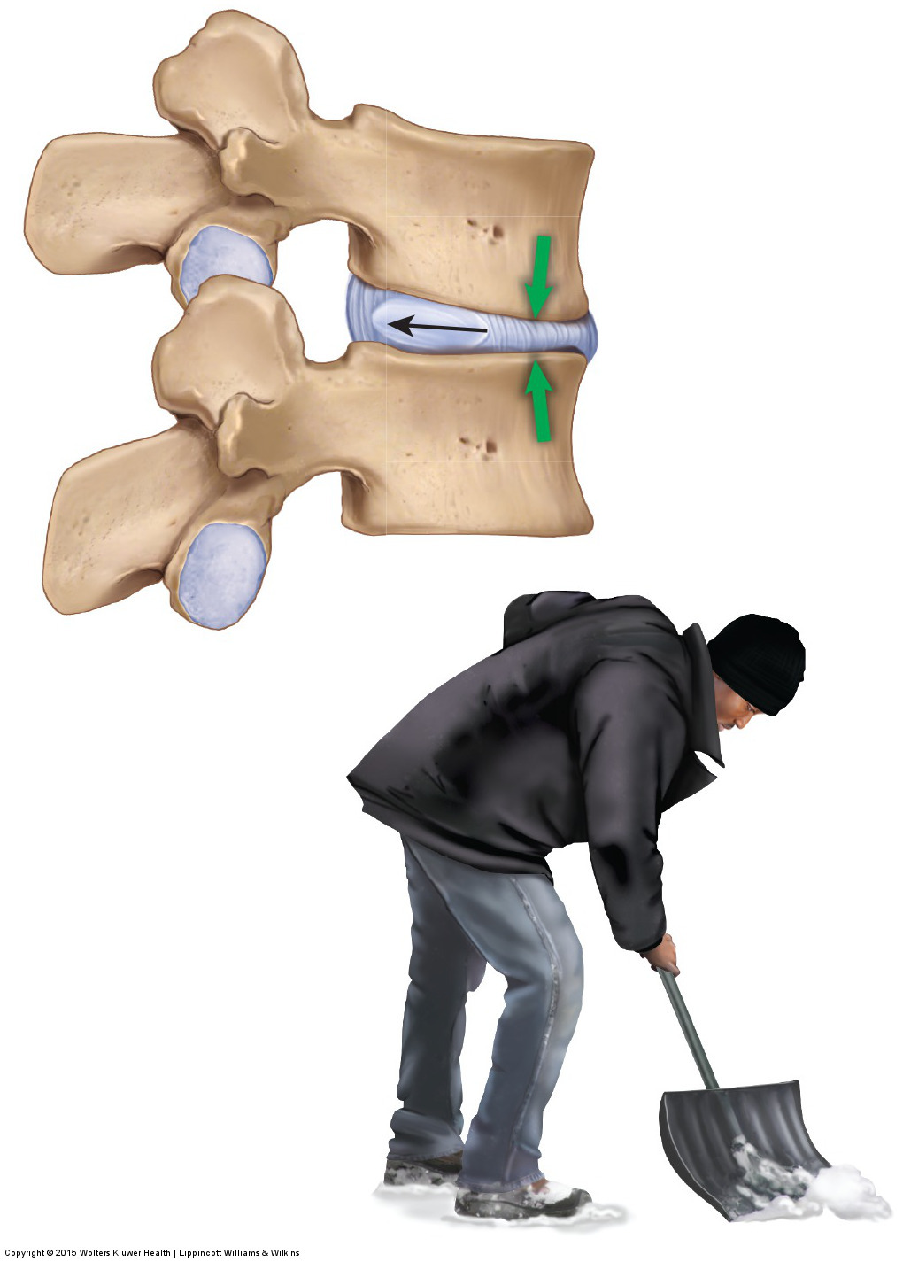 excessive flexion of the spine, such as shoveling snow see here, can result in a pathologic disc