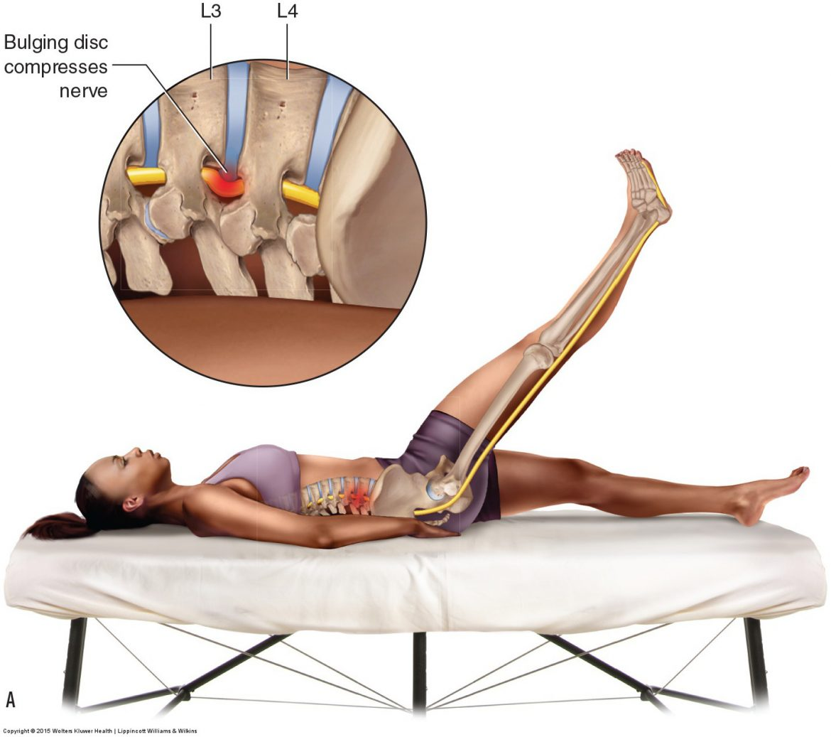 Active straight leg raise assessment for a pathologic disc