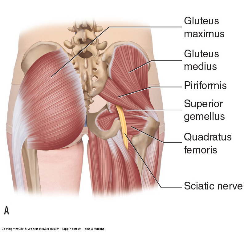 piriformis syndrome occurs when the sciatic nerve is compressed between the piriformis and the superior gemellus (seen here)