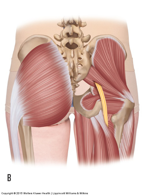 The sciatic nerve exits between the piriformis and superior gemellus. Compression here is termed piriformis syndrome