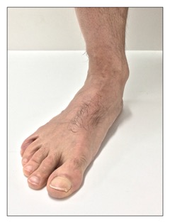 plantar fasciitis is characterized by pain at the plantar fascia on the underside of the foot