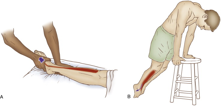Barking Mad About Running: When Shin Splints...... Aren't |Stretches For Shin Pain