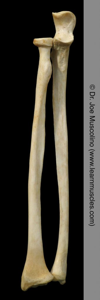 Anterior view of the radius and ulna (in anatomic position), demonstrating the radioulnar joints, on the right side of the body.