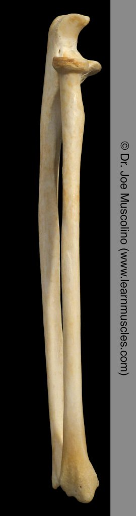 Lateral view of the radius and ulna on the right side of the body.