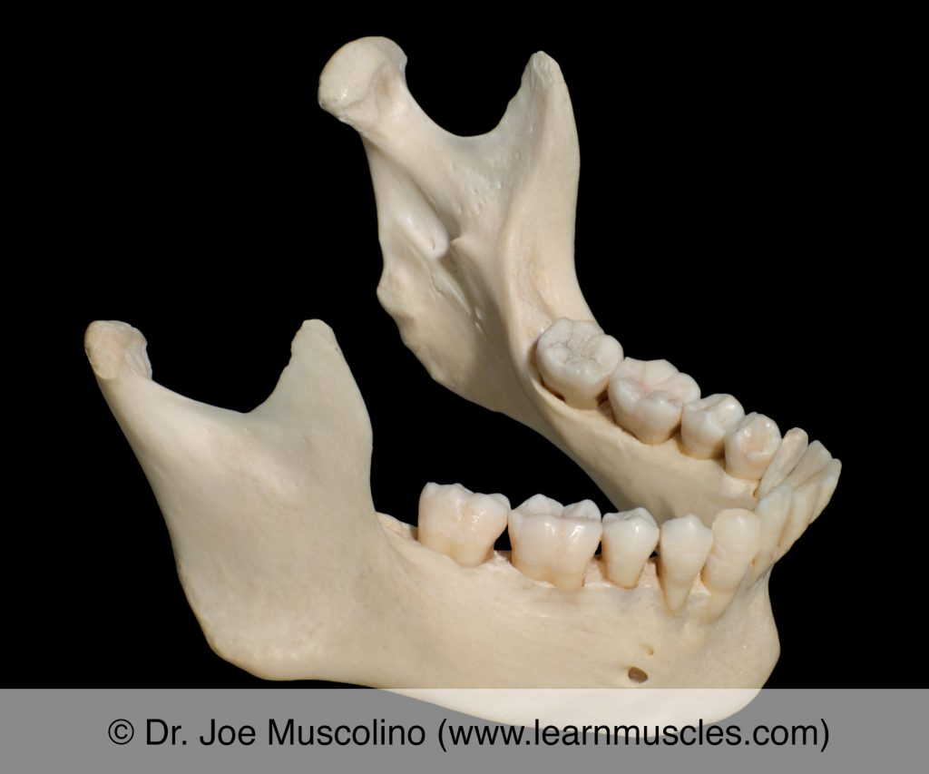 Oblique view of the mandible. More specifically, this oblique view is superior and anterolateral.