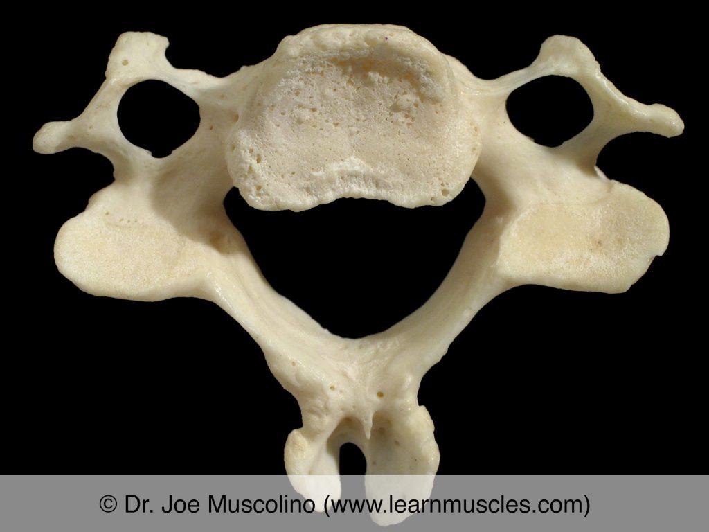 "Inferior view of C5 (""typical cervical vertebra"")."