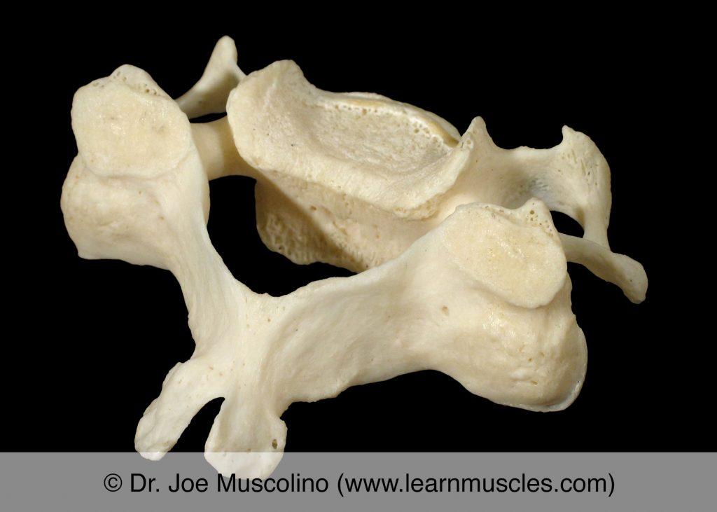 "Oblique view (superior posterolateral view) of C5 (""typical cervical vertebra"")."