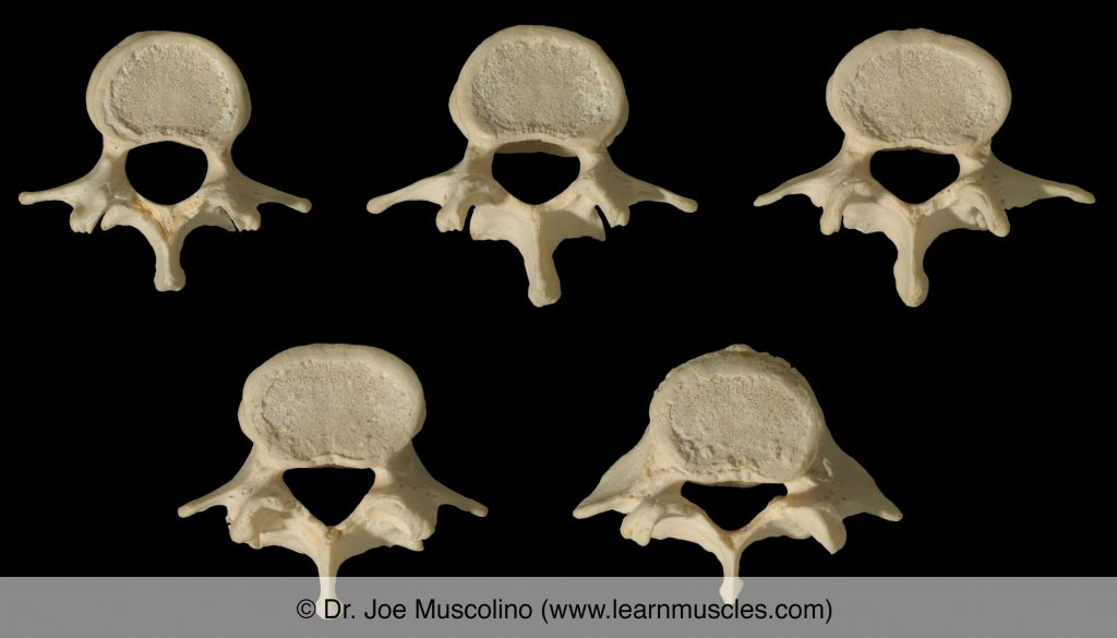Superior view of the five lumbar vertebrae, L1-L5, from superior to inferior, from top left row to bottom right row.