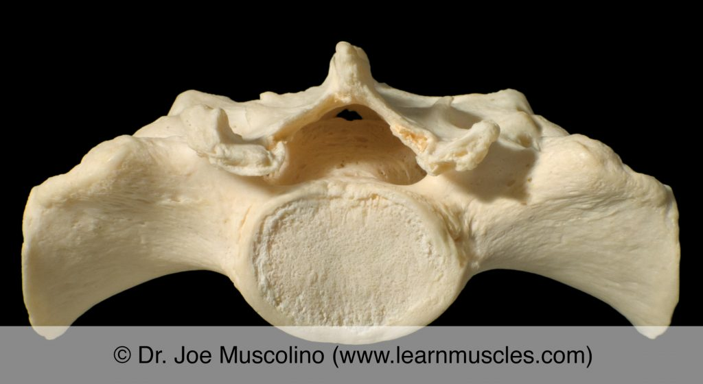 Superior view of the upper surface of the sacrum.