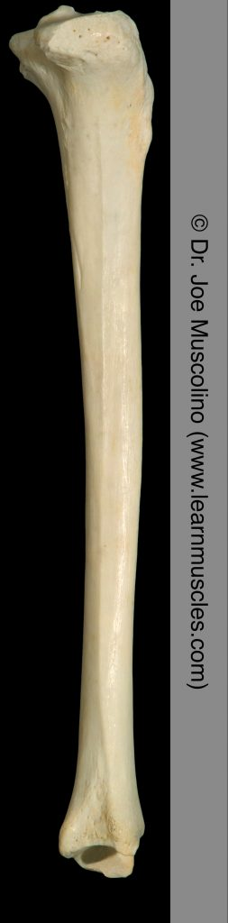 Lateral view of the tibia on the right side of the body. The fibula has been removed.