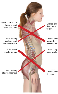Locked short muscles / locked long muscles in upper crossed syndrome and lower crossed syndrome
