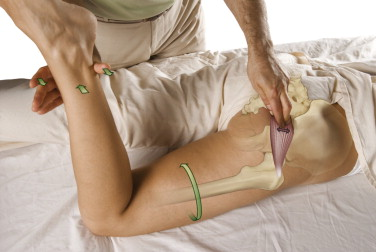 Manual Therapy Certification teaches assessment and treatment skills such as piriformis palpation seen here