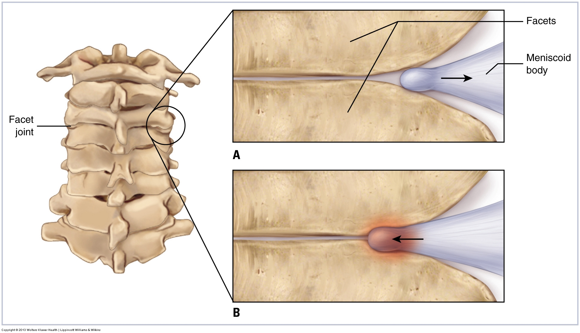 Joint Dysfunction Subluxation Misalignment Of The Cervical Spine