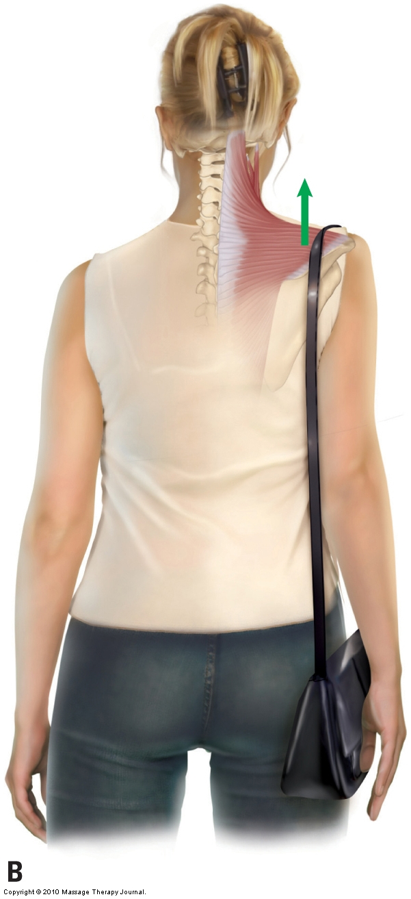 frontal plane postural assessment showing a high right shoulder girdle caused by carrying a bag on that side causing tight musculature