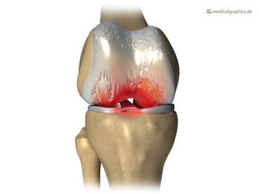 Osteoarthritis (OA) of the right knee