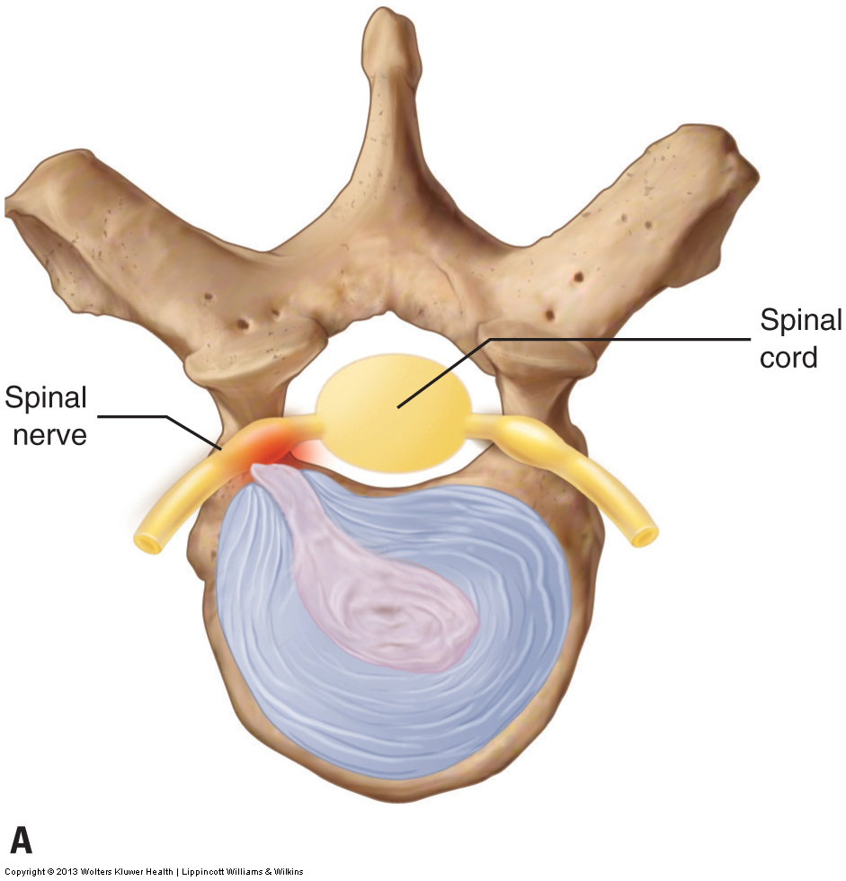 herniated disc with compression of the spinal nerve in the intervertebral foramen