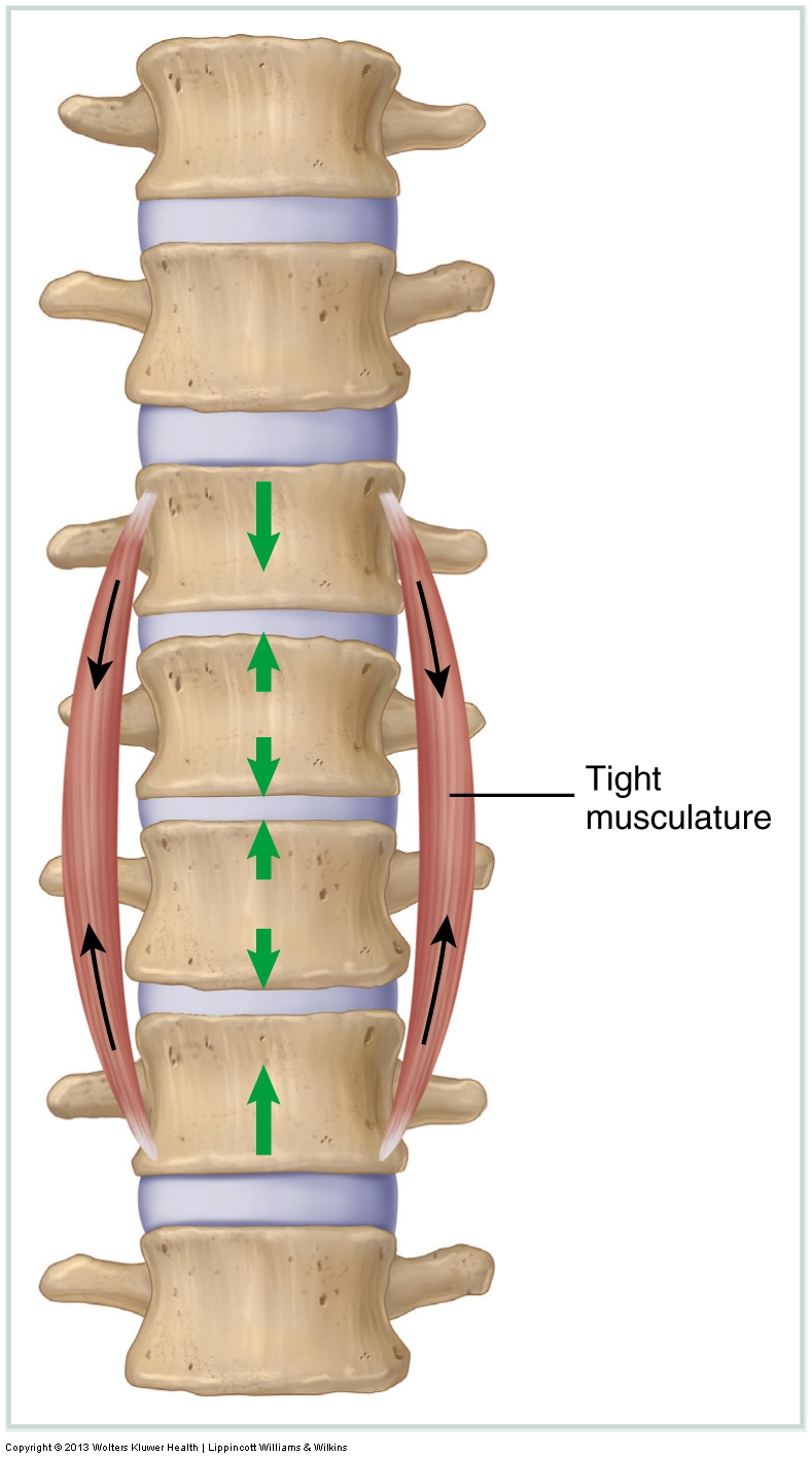 Tight musculature compresses joints