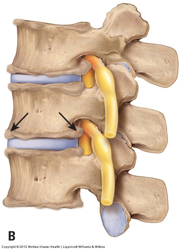 osteoarthritis (degenerative joint disease) of the spine causing bone spurs that are compressing on nearby spinal nerves