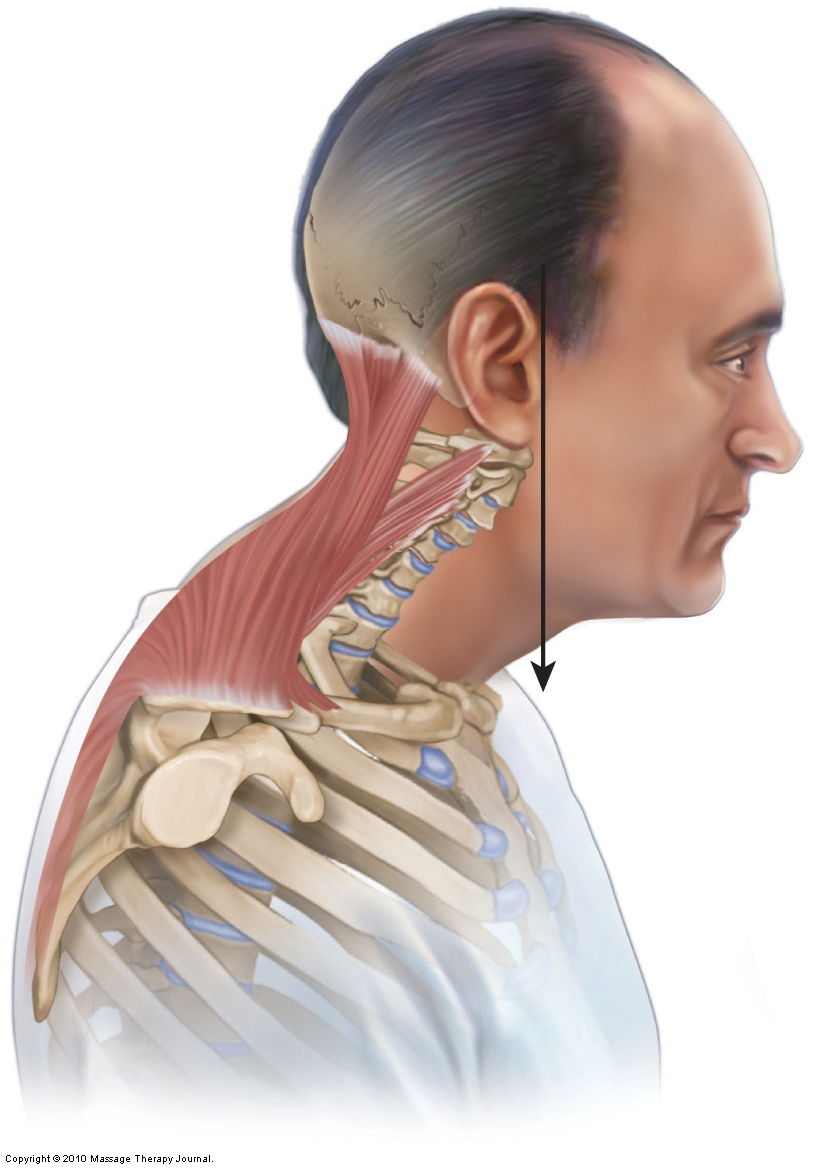 lateral view showing forward head posture dysfunctional pattern, part of upper crossed syndrome