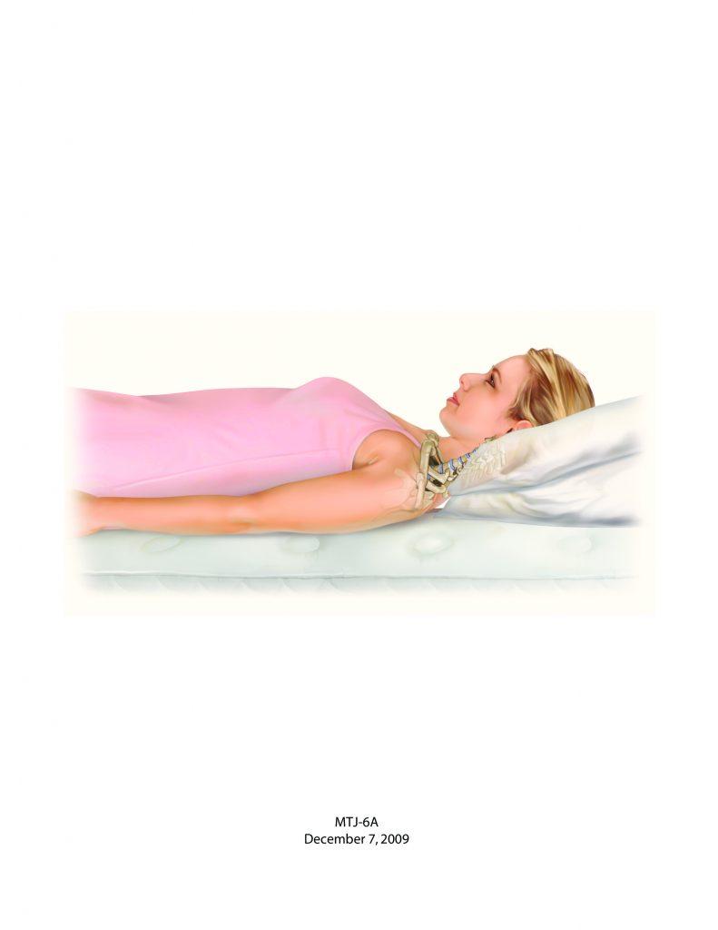 Bad posture - Back sleeping