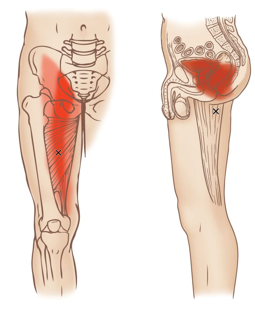 Adductor magnus - Trigger Point - Learn Muscles