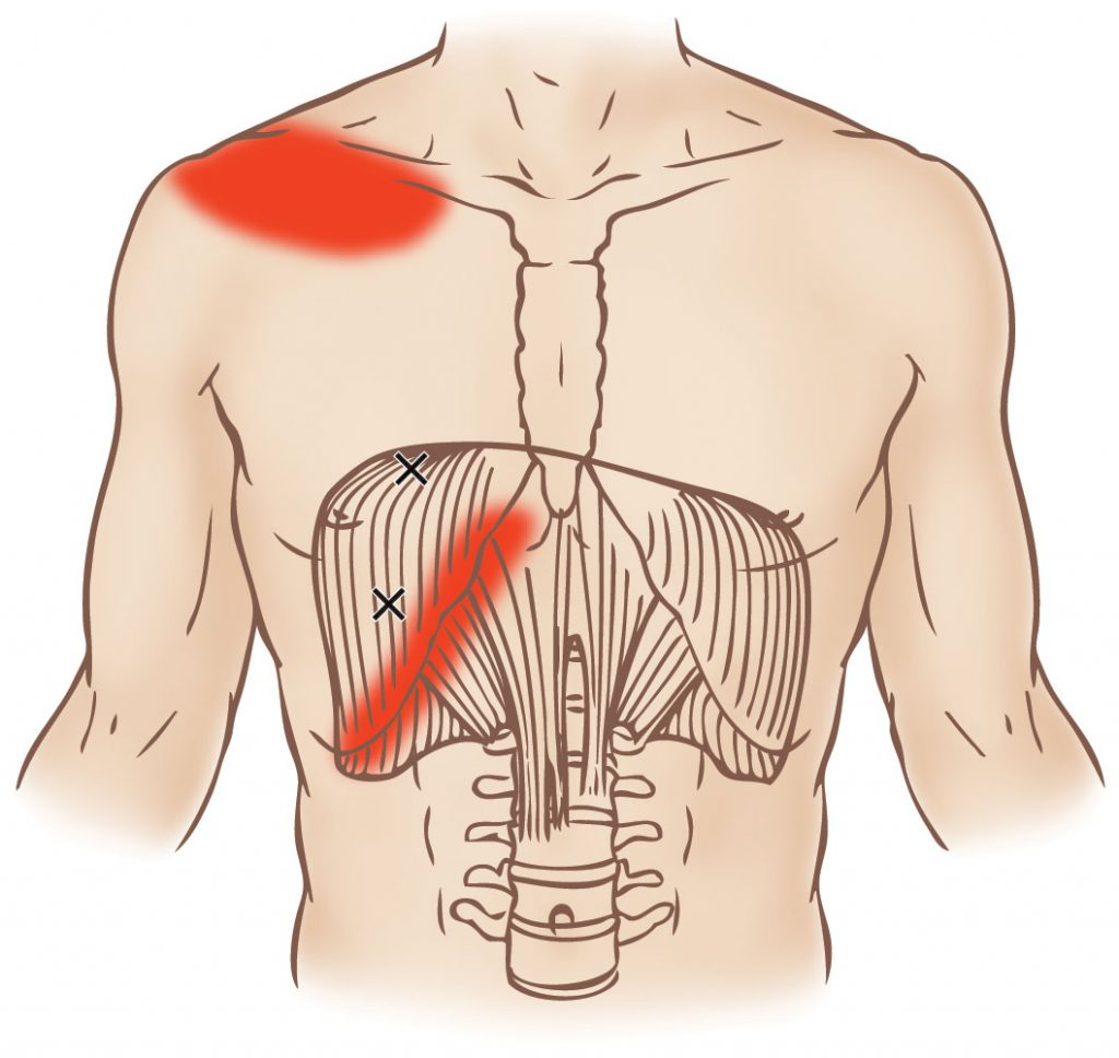 Diaphragm Trigger Point Learn Muscles
