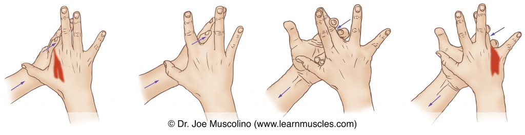 The dorsal interossei manus (of the central compartment group) are stretched with adduction of the index and ring fingers, and with ulnar and radial abduction of the middle finger at the metacarpophalangeal joints. Figures from left to right: adduction of the index finger, ulnar abduction of the middle finger, radial abduction of the middle finger, adduction of the ring finger.
