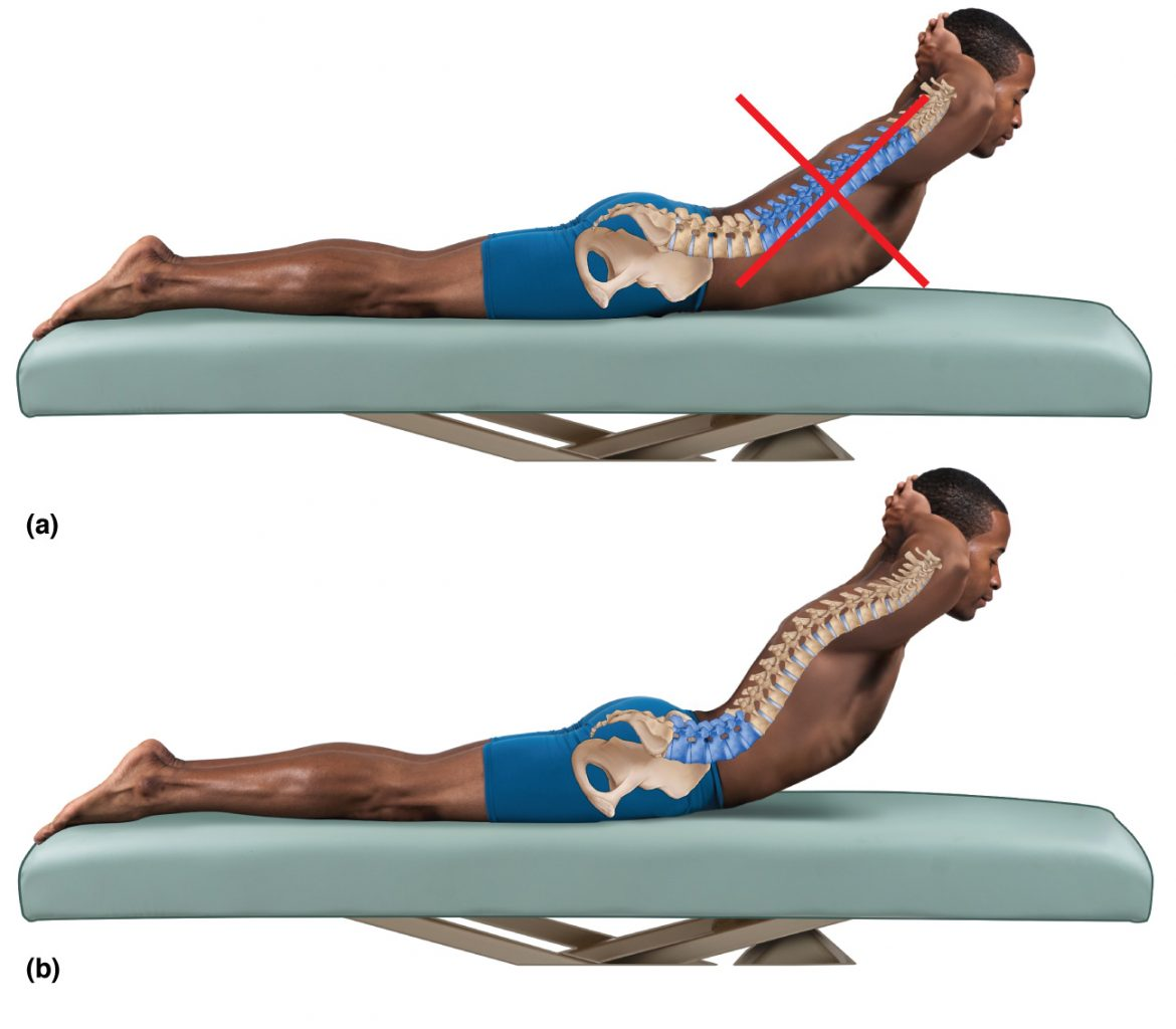 Extension exercise for a hypolordotic lumbar spine.