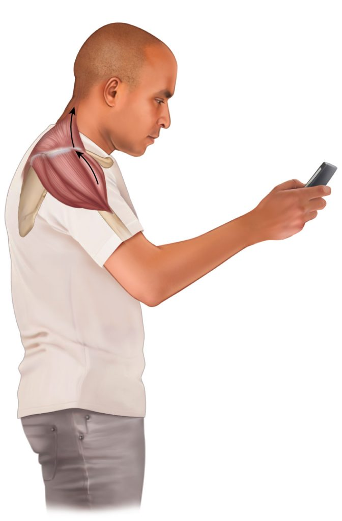 anterior deltoid strain with smart phone use