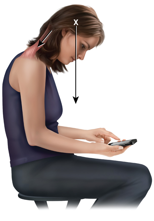 Smart phone use can lead to forward head posture