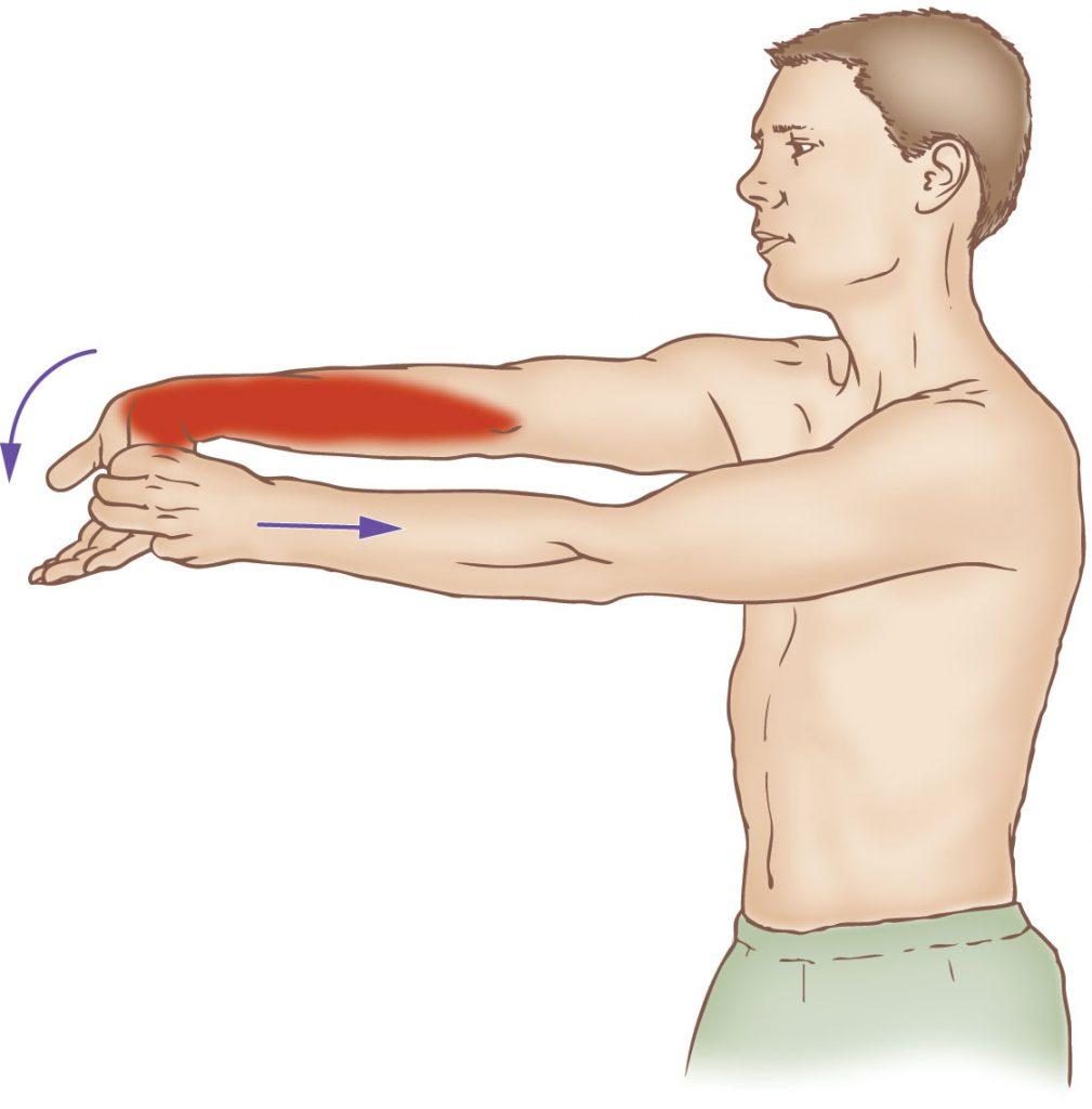 flexor carpi ulnaris stretching learn muscles