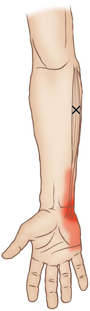 flexor carpi ulnaris trigger point learn muscles