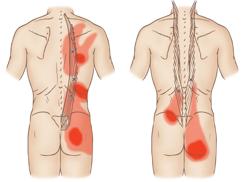 iliocostalis and longissimus trigger point learn muscles