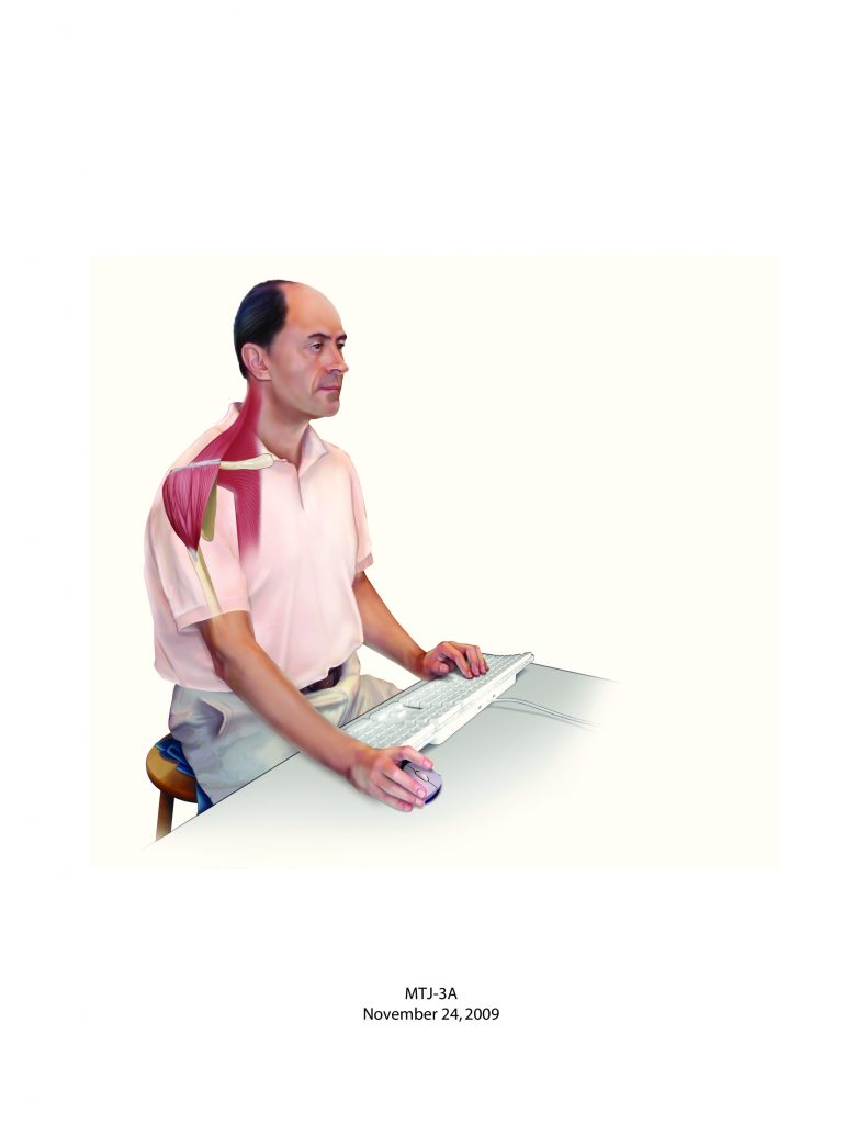 Bad computer posture