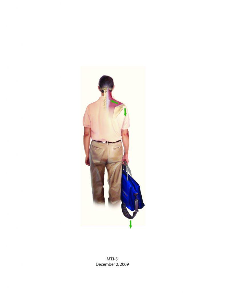 Holding a bag - posture