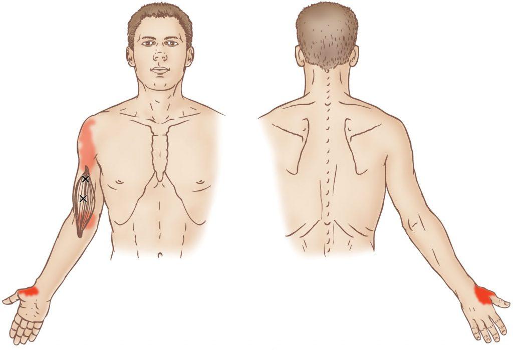 Brachialis - Trigger Point - Learn Muscles