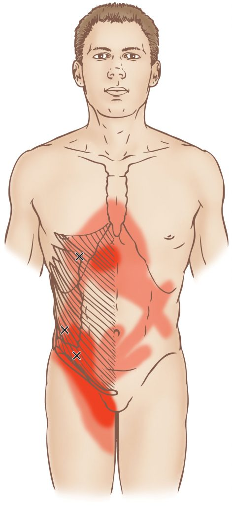 External And Internal Abdominal Obliques Trigger Point Learn Muscles